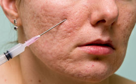 pic of papule  - Acne treatment with injection on girl - JPG