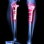 Fracture Tibia(leg Bone)