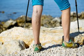 pic of varicose  - Woman with varicose veins on a leg walking using trekking poles - JPG