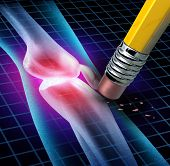 stock photo of joint inflammation  - Human Knee pain relief with an x - JPG