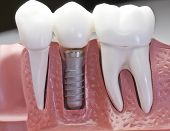foto of dental  - This model show the teeth have been capped and the stainless pin in the gums - JPG