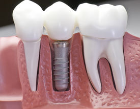 picture of dental impression  - This model show the teeth have been capped and the stainless pin in the gums - JPG
