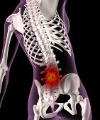 Back Ache In A Female Skeleton