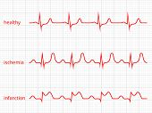 Heart cardiogram vector charts set. Healthy heart rhythm, ischemia, infarction poster