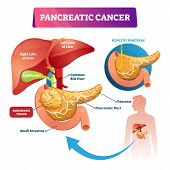 Pancreatic Cancer Vector Illustration. Labeled Sick Stomach Oncology Disease Scheme. Diagram With In poster