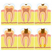 stock photo of gingivitis  - Some illustrations of an internal structure of tooth - JPG