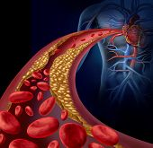 stock photo of fat cell  - Clogged artery and atherosclerosis disease medical concept with a three dimensional human artery with blood cells that is blocked by plaque buildup of cholesterol as a symbol of arteriosclerotic vascular diseases - JPG
