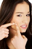 image of pimples  - Unhappy teenage woman squeezing pimple - JPG