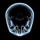 Human Skull - X-ray Top View