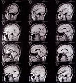 Brain Tomography