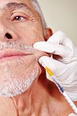 Old man getting cosmetic surgery on corner of mouth in beauty clinic