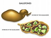 picture of lipids  - illustration of the section of the gallbladder with gallstones - JPG