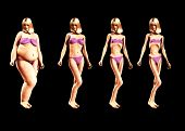 foto of bulimic  - An image of a women who has gone from being fat to very very thin a useful image about weight loss - JPG