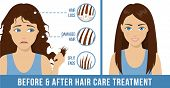 Hair Care. Common Hair Problems - Split Ends, Damaged Hair, Hair Loss. Before And After Hair Care Tr poster