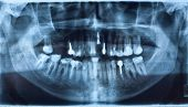Panorama dental x-ray mit Implantat