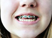 foto of overbite  - a braces on the bad crooked teeth - JPG
