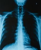 X-ray Of A Thorax, Close-up. X-ray Film Of Human Skeletal System poster