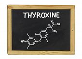 chemical formula of thyroxine on a blackboard