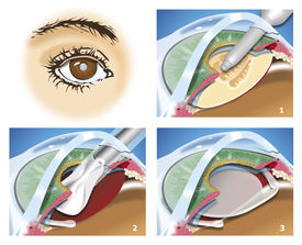 image of cataracts  - Schematic sketch of cataract surgical steps intraocular lens implant extracapsular extraction - JPG