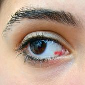 image of hemorrhage  - an eye with some damaged blood vessels - JPG