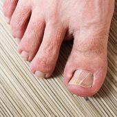 image of fingers legs  - Damaged toenail - JPG