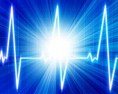 stock photo of blue-screen-of-death  - Heart monitor on a bright blue background - JPG