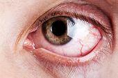 Blood Capillary Human Eye