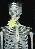 King Of Skeletons
