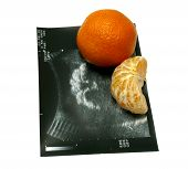 Tangerine Ultrasound