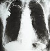 Pacemaker Heart Medicine