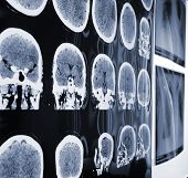 image of mri  - Unusual view of the MRI X - JPG