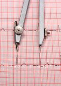 pic of electrocardiogram  - Electrocardiogram graph and calipers ekg heart rhythm medicine concept - JPG