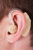 Hearing Aid On The Man's Ear
