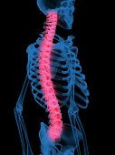 picture of spinal disks  - 3d X - JPG