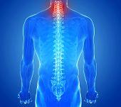 X-ray View Of Spine Pain - Vertebrae Trauma