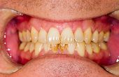 image of  habits  - Dental plaque on denture sign of smoking habits - JPG