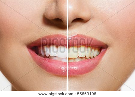 Woman Teeth Before and After Whitening. Over white background. Happy smiling woman. Dental health Co poster