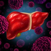 stock photo of tumor  - Human liver cancer organ as a medical symbol of a malignant tumor red cell disease as a cancerous growth spreading through the digestive system by alcohol and other environmental toxic reasons - JPG