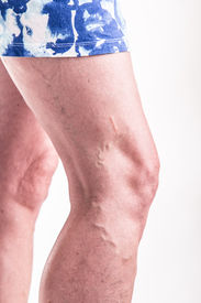 foto of varicose  - Varicose Veins on the legs of woman  - JPG