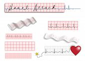 Full page of EKG strips with title and spot illustrations