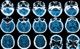 picture of frontal lobe  - MRI scan image of the human - JPG