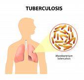 Tuberculosis, Mtb Or Tb