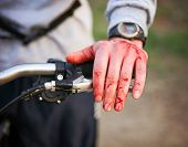 image of bloody  - a mountain biker cyclist with blood all over his hands from wrecking his bike and sustaining a bloody nose injury - JPG