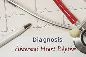 Cardiac Diagnosis Of Abnormal Heart Rhythms. On Doctor Workplace Is Paper Medical Documentation, Whi poster