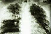 picture of tuberculosis  - Film X - JPG