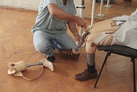 foto of prosthetics  - Hands machinery governing prosthetic leg on man - JPG