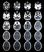 pic of ct scan  - Series of images from a computerized tomography of the brain - JPG