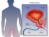 pic of bladders  - medical illustration of the effects of prostate cancer - JPG