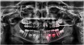 image of bad teeth  - A radiograph of the teeth with bad teeth who need orthodontic - JPG