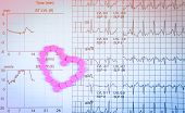 Ekg Or Ecg (electrocardiogram) Graph Report Paper. Est ( Exercise Stress Test ) Result And Pink Hear poster